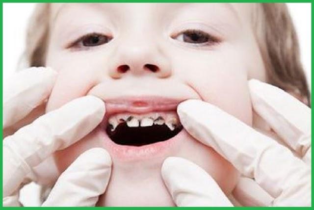 Hậu quả khi mất răng sữa sớm
