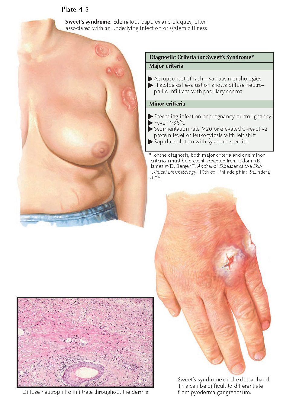 ACUTE FEBRILE NEUTROPHILIC DERMATOSIS (SWEET'S SYNDROME)