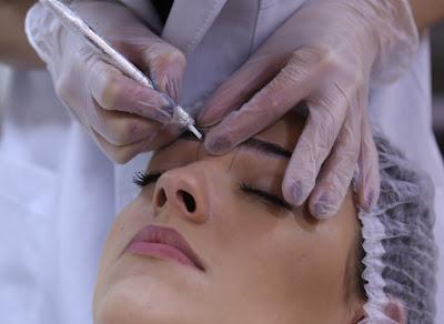 Técnica de despigmentação corrige sobrancelhas