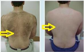 Krozenwart 08152054076 Dr Me Ping Nonlaser Permanent Hair