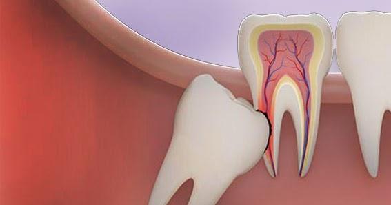 مبدأ الإزاحة في تصوير الأسنان مع شرح بالأمثلة In 2021 Dental Vr Goggle Electronic Products