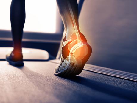 talon d'Achille douleur, blessure course a pied, gérer la blessure