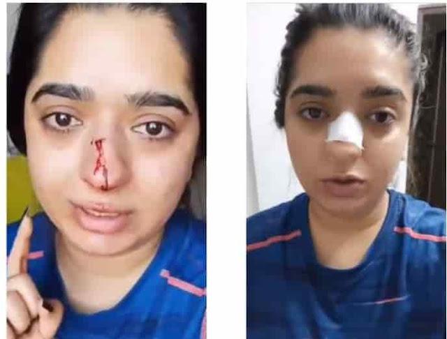 zomato viral video hitesha chandranee