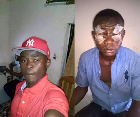 Graphic: Man left blinded in both eyes after he was attacked with acid in Anambra