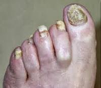 las uñas amarillas