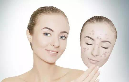 Cara menghilangkan bintik hitam di wajah