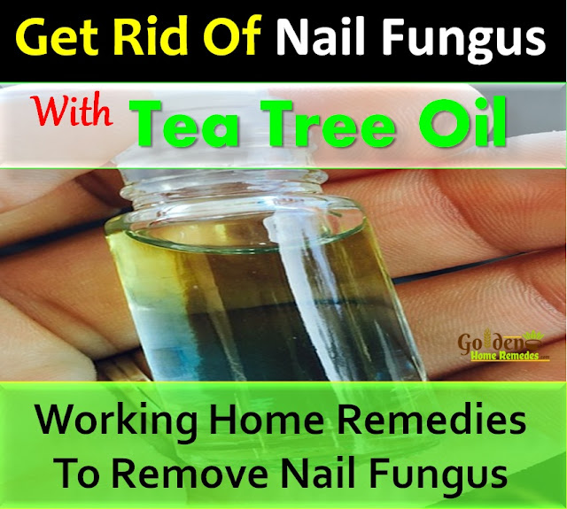 Tea Tree Oil For Nail Fungus, Nail Fungus, How To Get Rid Of Nail Fungus, Home Remedies For Nail Fungus, Nail Fungus Treatment, Nail Fungus Home Remedies, How To Treat Nail Fungus, How To Cure Nail Fungus, Nail Fungus Remedies, Remedies For Nail Fungus, Cure Nail Fungus, Treatment For Nail Fungus, Best Nail Fungus Treatment, Nail Fungus Relief, How To Get Relief From Nail Fungus, Relief From Nail Fungus, How To Get Rid Of Nail Fungus Fast,