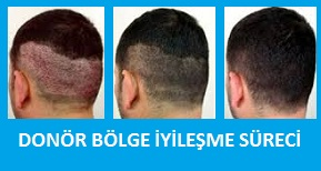 saç ekimi donör bölge iyileşmesi