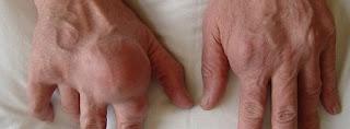 Colchicin gegen Gicht