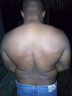 A staff of the Nigerian Television Authority (NTA) has cried out after allegedly being brutalized by soldiers of the 32 Artillery Brigade, Owena Cantonment in Akure, Ondo State who were effecting a lockdown order issued by the government .