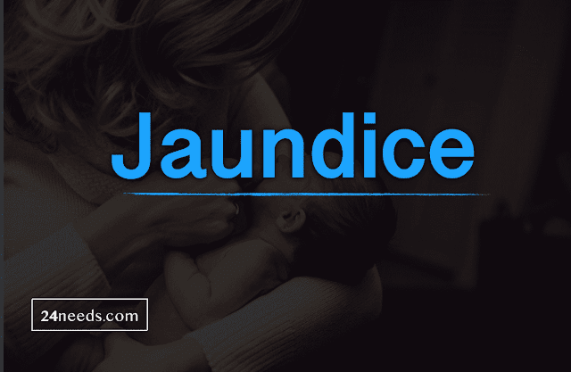 1. What is jaundice1. What is jaundice