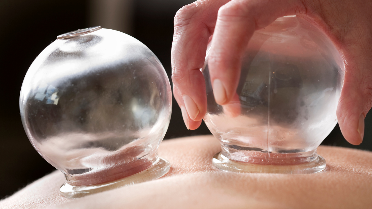 Can Cupping Therapy Help Dizziness? - themanualtherapist.com