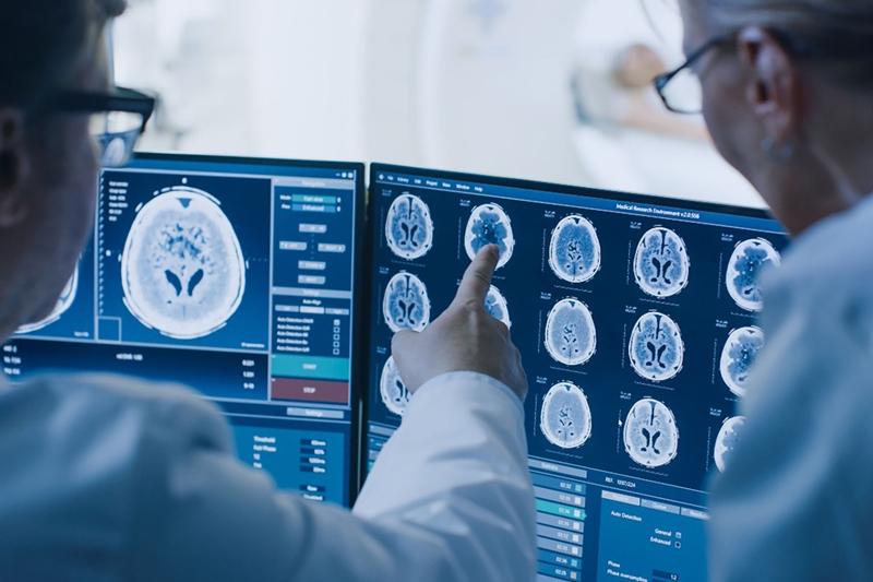 Prostat kanserinde yeni nesil tedavi teranostik yaklaşım