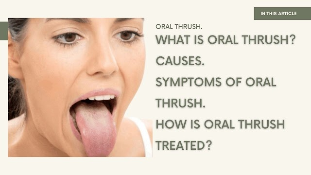 What is Oral Thrush and Cause, Symptoms of Thrush | 2021