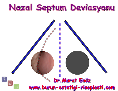 """Nasal Septum Deviation"" and ""Septoplasty Operation"""