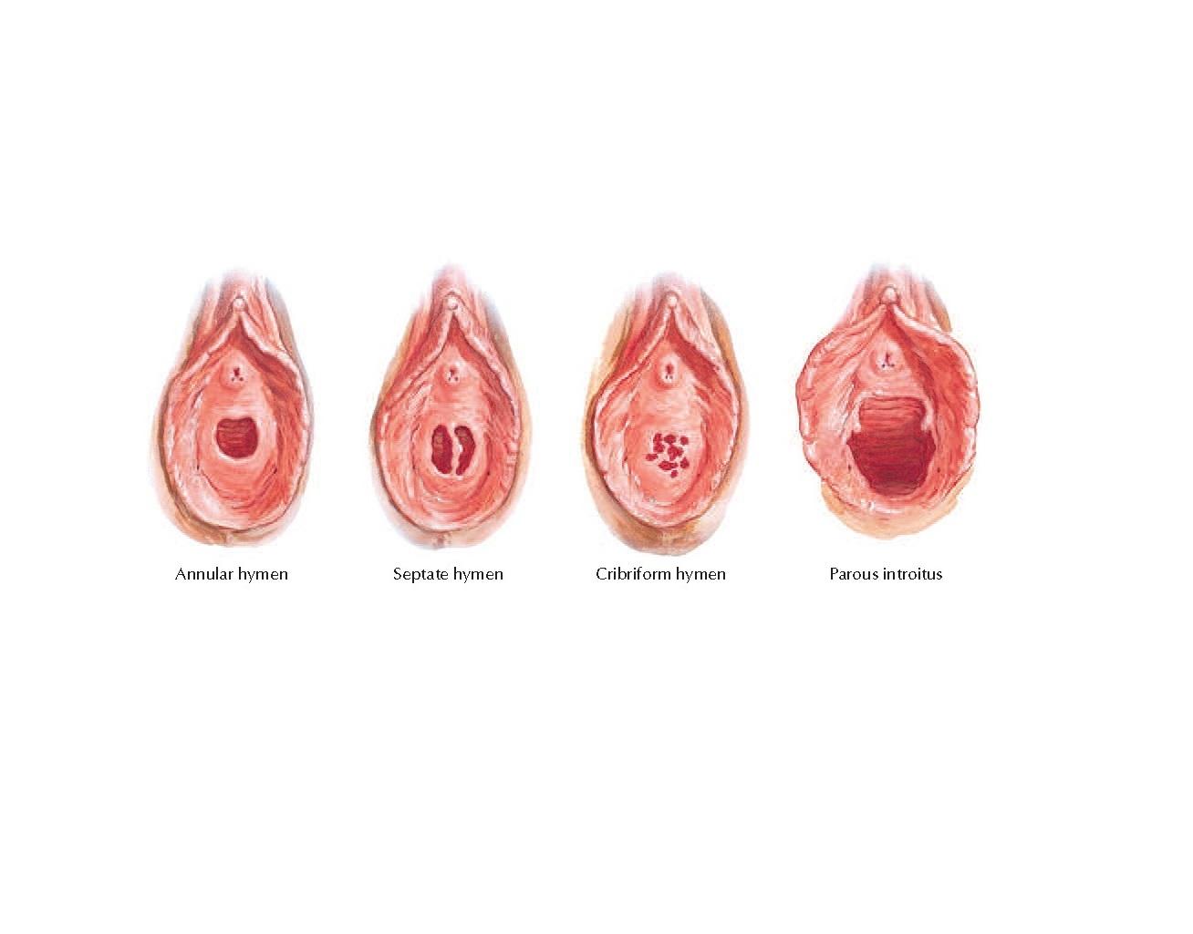 Variations in Hymen Anatomy