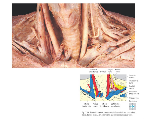 Root of the neck after removal of the clavicles, pretracheal fascia, thyroid gland, carotid sheaths and left internal jugular vein.