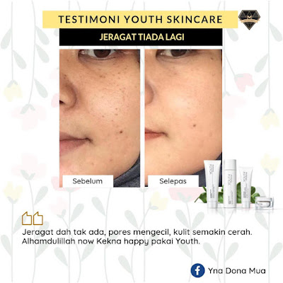 Testimoni-Youth-Skincare