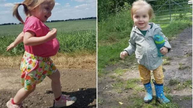 Девочка с желудком, печенью и кишечником снаружи дожила до 2 лет