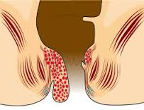obat tradisional penyakit ambeien