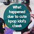 What Happened due to Cute Kpop Idol's Cheek