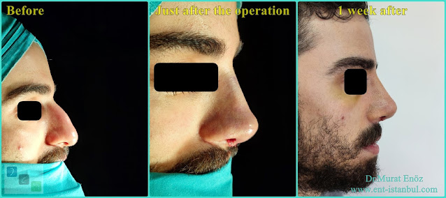 Male Nose Aesthetic Surgery in Turkey,Men's Rhinoplasty in Istanbul,Nose Job in Male Patient,Rhinoplasty in Men Istanbul,