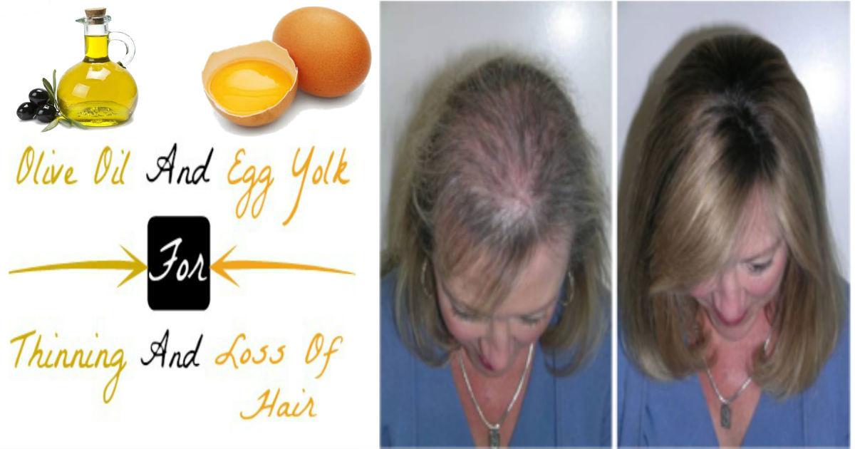 Olive oil for hair loss men