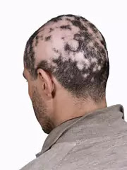 Hair Loss Due To Stress And Anxiety