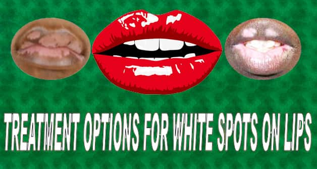 7 Effective Tips To Treat White Spots On Lips