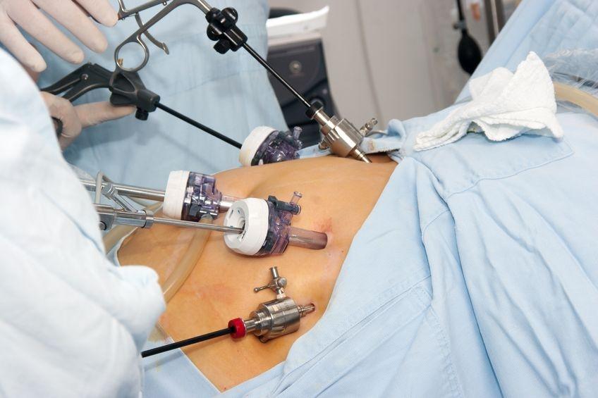 Удаление Грыжи Послеоперационная Диета. Что можно кушать после операции грыжи на животе