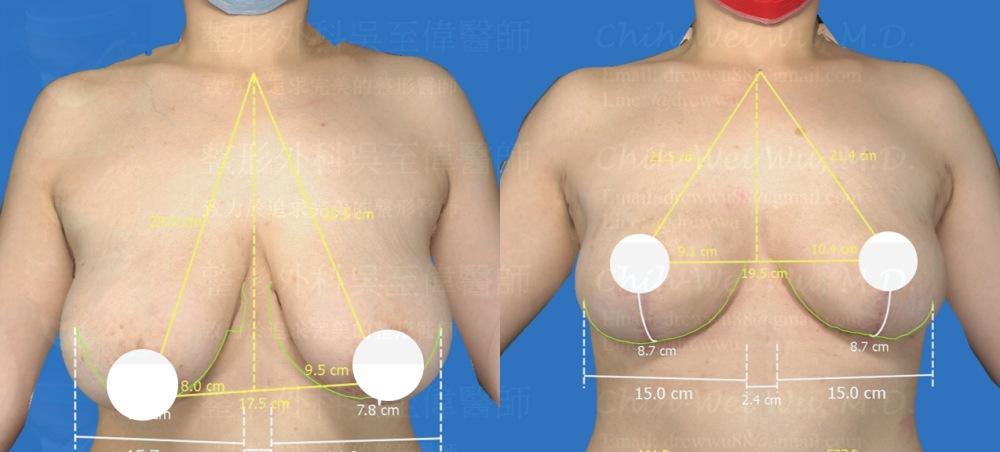 此案例術前為G罩杯與嚴重乳房下垂,經縮胸手術後結果對稱,胸部自然令人滿意