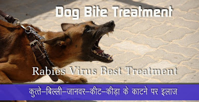 कुत्ते बिल्ली के काटने पर इलाज, Dog Bite Treatment in Hindi, kuta bili ke katne par upchar, kute ke katne par kya kare, Animal Bites and Scratches, Animal Bites, कुत्ते के काटने पर प्राथमिक उपचार, First aid for dog bite in hindi, kute billi ke katne ka ilaj, home remedies for animal dog cat bites, kute ke katne per ilaj