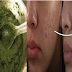 Achieve Flawless Skin And Eliminate Acne Scars With This Green Mixture