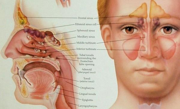 وصفة طبيعية فعالة لعلاج التهاب الجيوب الانفية