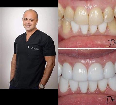 االفرق بين اسنان واستخدام الليزر المائي