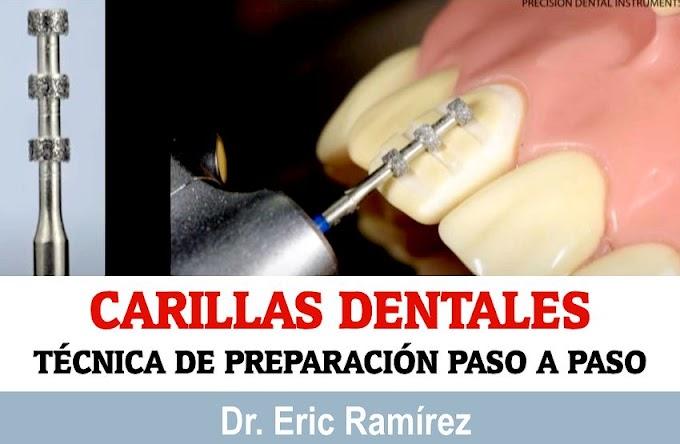 CARILLAS DENTALES: Técnica de preparación Paso a Paso - Dr. Eric Ramírez