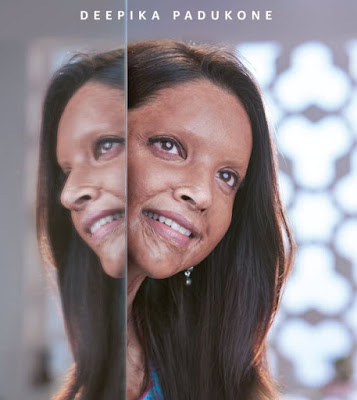 Chhapaak Movie First Look, Chhapaak Movie Poster