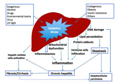 kerusakan hati, liver injury, diabetes mellitus, hubungan diabetes mellitus dan kerusakan hati, kanker hati