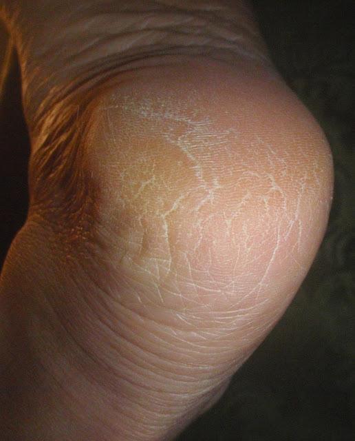 dry callused heel
