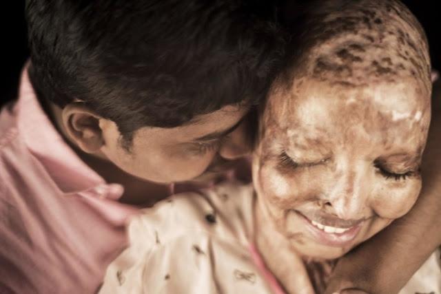 Ослепшая В 15 Лет Жертва Кислотной Атаки Встретила Свою Любовь В Больнице!