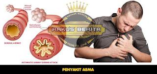 Mencegah Penyakit Asma