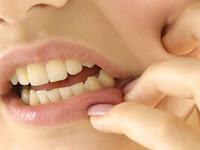 Mengenal Penyebaran Infeksi dari Gigi dan Rongga Mulut