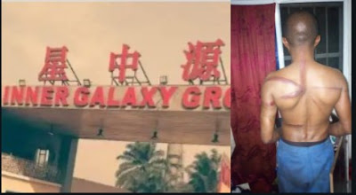 We Can Kill You And Get Away With It – Chinese Firm In Abia, Where Workers Are Tortured