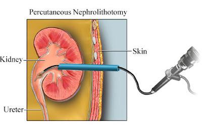 http://urologistmumbai.com/percutaneous-nephrolithotripsy-pcnl.html