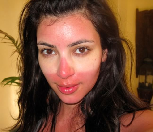 Sunburn on face