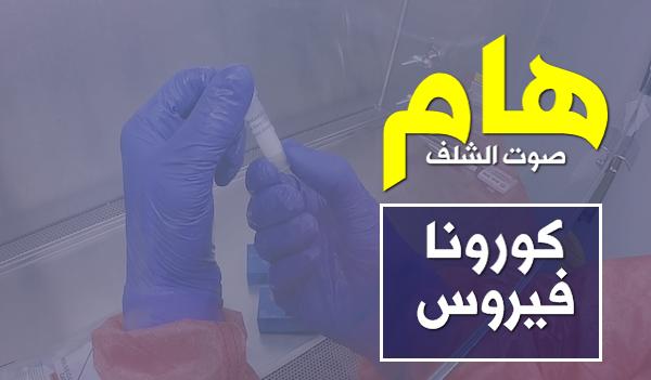 ارتفاع عدد الإصابات المؤكدة بفيروس كورونا إلى 302