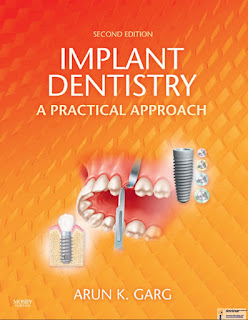 Implant Dentistry A Practical Approach 2nd Edition
