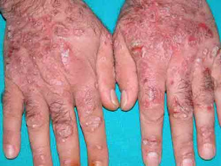 https://obatkhususgatal.blogspot.com/2017/08/kenapa-telapak-tangan-gatal-dan-kulit.html