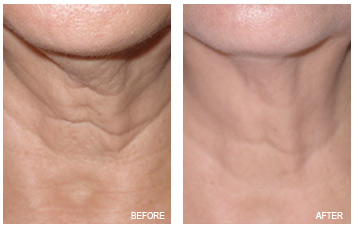 LIMITED TIME OFFER: NON-INVASIVE LASER SKIN TIGHTENING & PORE