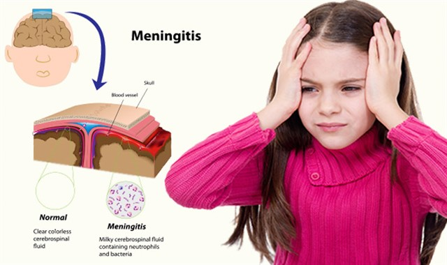 اعراض الالتهاب السحائي وطرق الوقاية منه